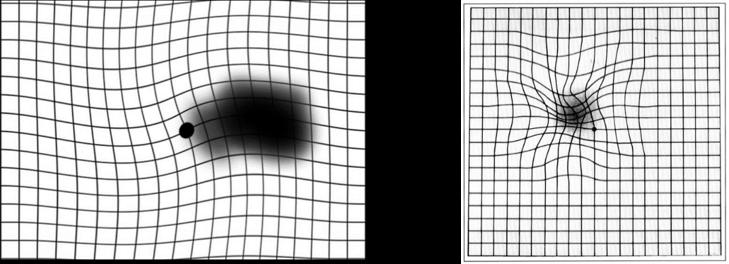 לוח אמסלר - גריד עיוותים אפשריים - ריבועים שמתעוותים בצורות שונות