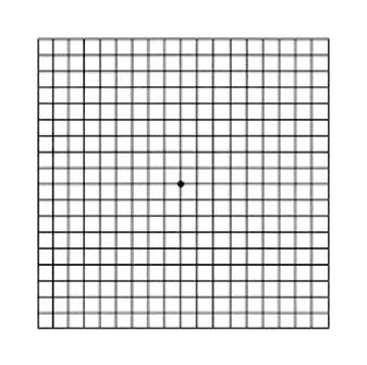 לוח אמסלר - גריד ריבועים עם נקודה שחורה במרכז