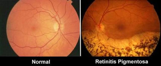 מבנה פנימי של העין RP לעומת מבנה בנורמה