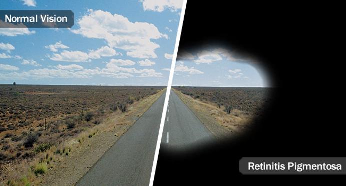 RP ראיית צינור מול ראיה רגילה