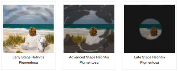 RP שלבים של המחלב - מתוארים 3 שלבים קל, בינוני וחמור